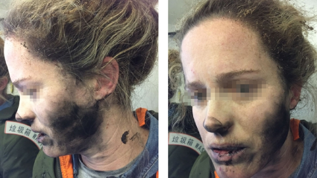 Article image for Melbourne woman's headphones explode mid-flight