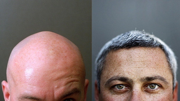 Article image for Scientists discover a gene they believe is responsible for grey hair