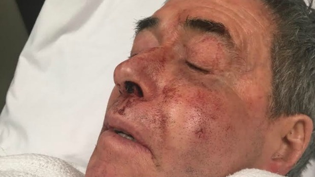 Article image for Maroondah Council called into question over CCTV after vicious attack