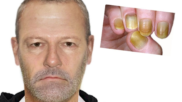 Article image for Police hunt for 'yellow-nailed' man after sexual assault on the 86 tram