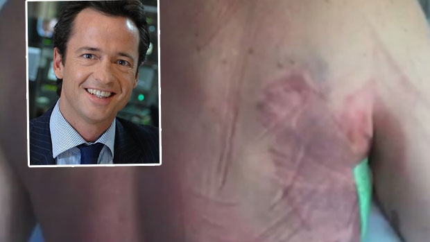 Article image for Hamish McLachlan recovers in hospital after being trampled by horse
