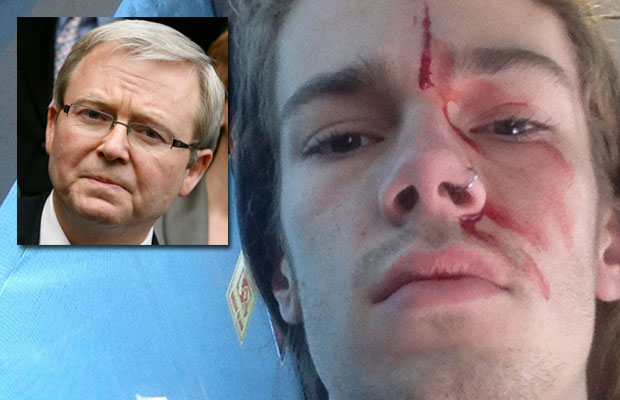 Article image for Former Prime Minister's godson attacked 'standing up' for marriage equality