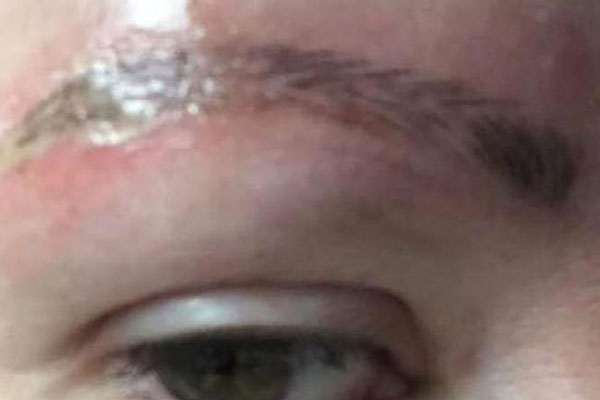 Article image for Melbourne salon sues for $150k after woman posts photos of eyebrow infection on Facebook