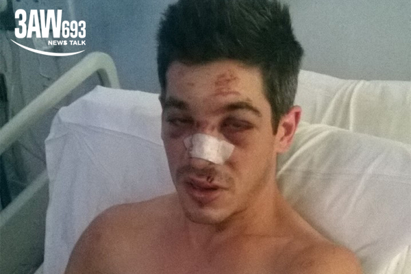 Article image for 'I'm lucky to be alive': Man emotionally recalls brutal bashing by group of thugs