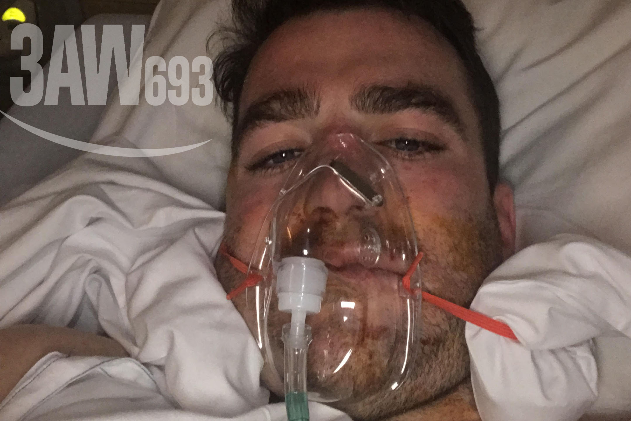 Article image for Rumour confirmed: Bashed footy fan undergoes surgery after 'cowardly act'