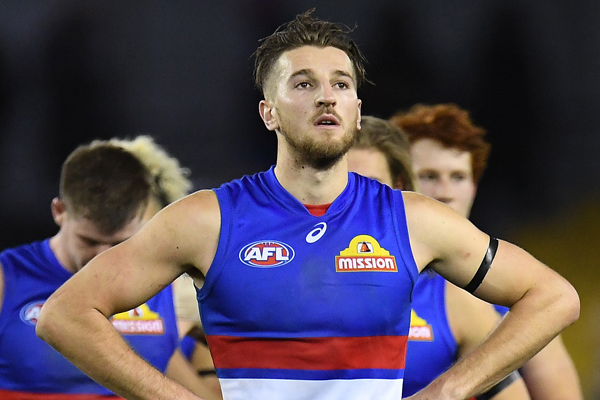 Article image for Western Bulldogs star to miss up to three weeks