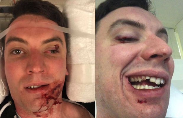 Article image for Man 'lucky to be alive' after attack in country town