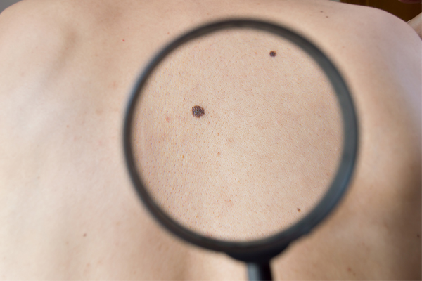 Article image for Australian researchers develop world-first test capable of detecting melanoma