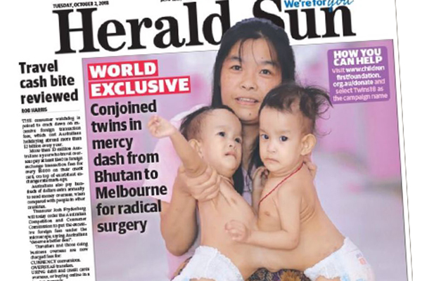Article image for RCH to perform radical surgery to separate conjoined twins from Bhutan