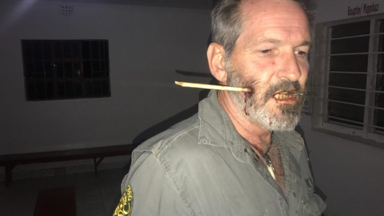 Article image for Kenyan ranger who was shot in the head with an arrow speaks with Ross and John