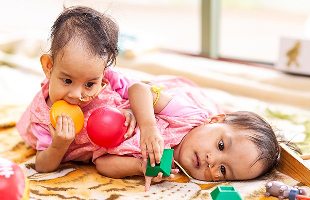 Article image for Success! Conjoined twins Nima and Dawa separated!