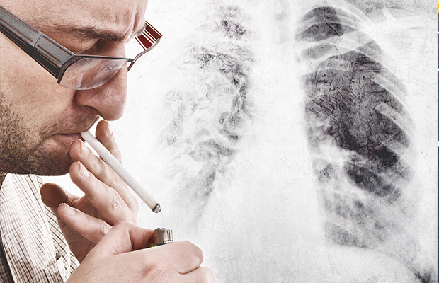 Article image for CT scans spearhead new plan to detect lung cancer early