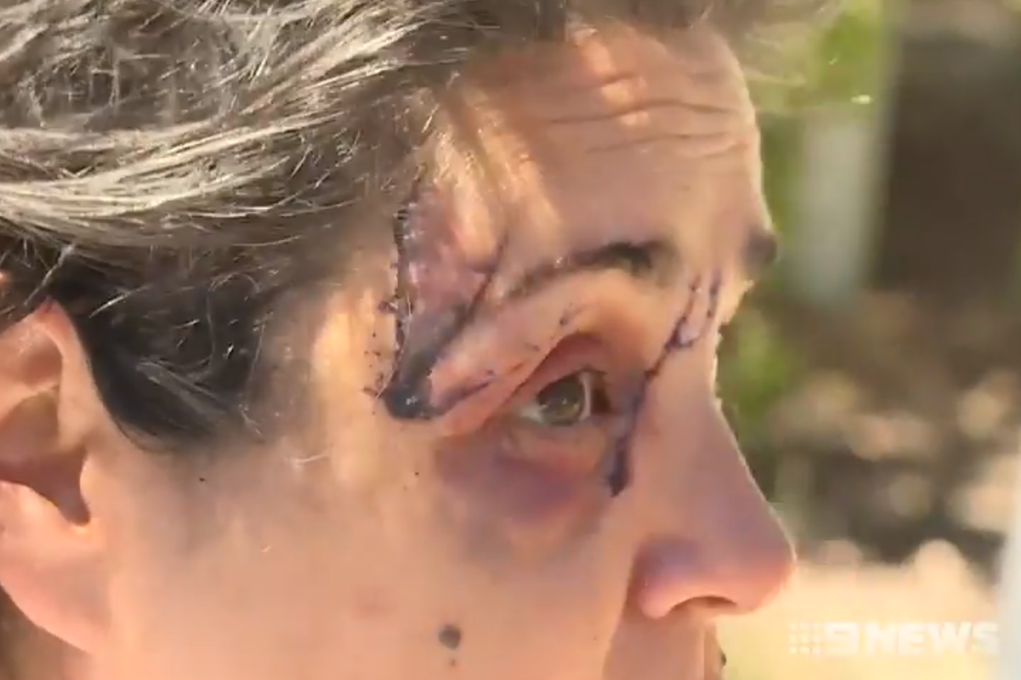 Article image for Woman violently attacked by kangaroo while walking dog