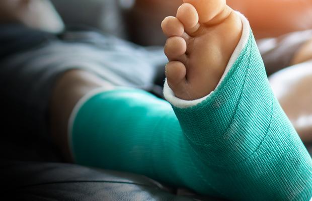 Article image for How Dan the plasterer got his wrong leg plastered