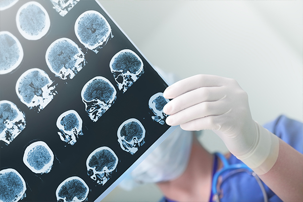 Article image for Head trauma expert explains why helmets often make 'concussion and brain trauma worse'